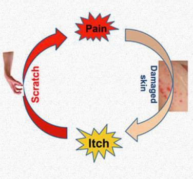 how eczema develops