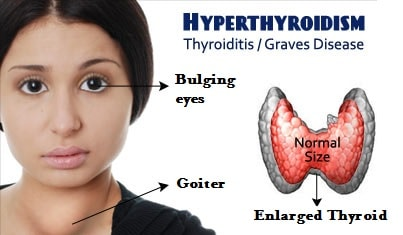 Effect of Hypothyroidism - NAET Dubai