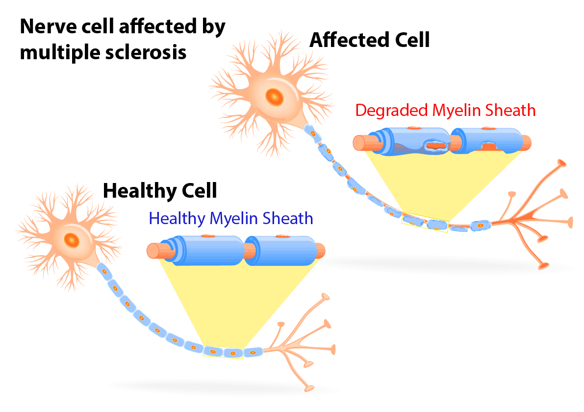 Cell affected by Multiple Sclerosis - NAET Dubai