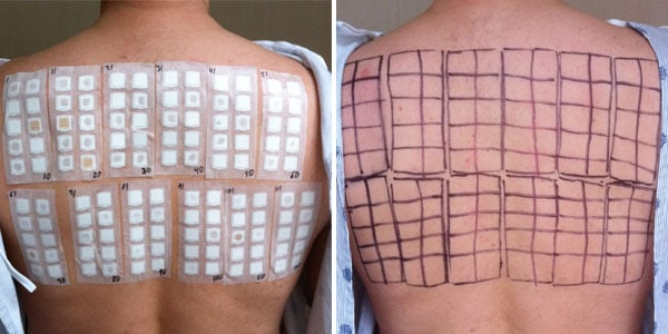 Skin Test NAET Dubai