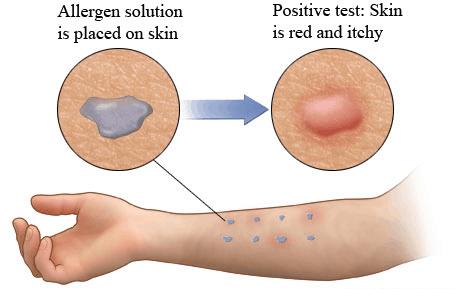 Skin allergy test - NAET Dubai