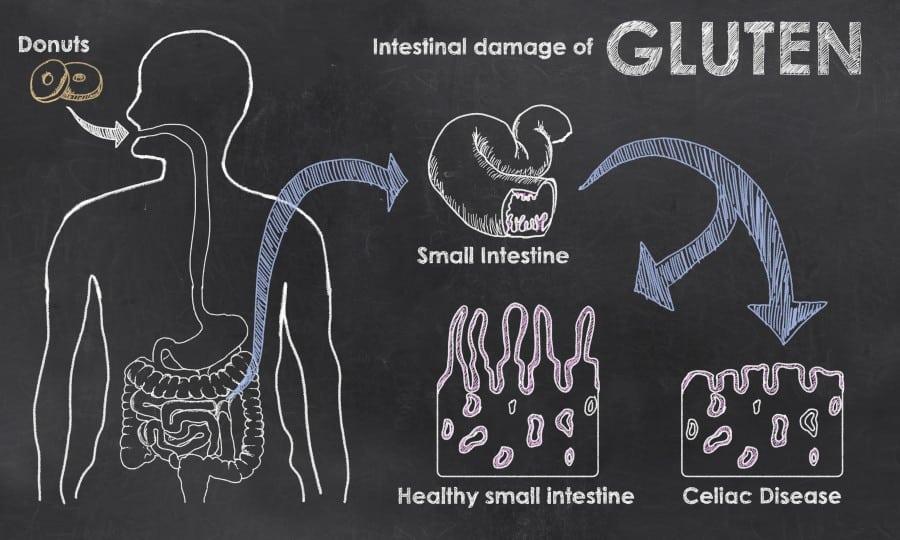 Celiac Disease NAET Dubai
