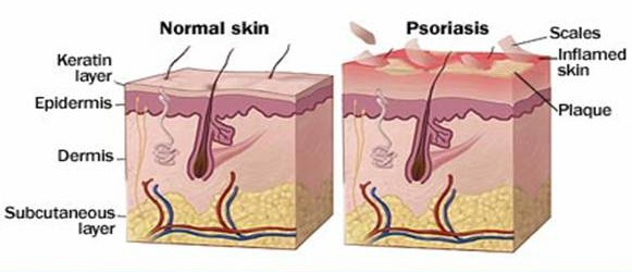 Inner skin view for Psoriasis NAET Dubai