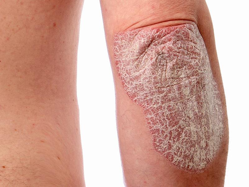 Allergy on the elbow NAET Dubai