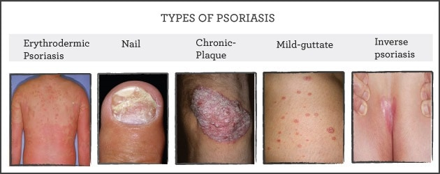All kinds of Psoriasis NAET Dubai