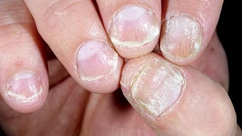 Psoriasis on Nails NAET Dubai