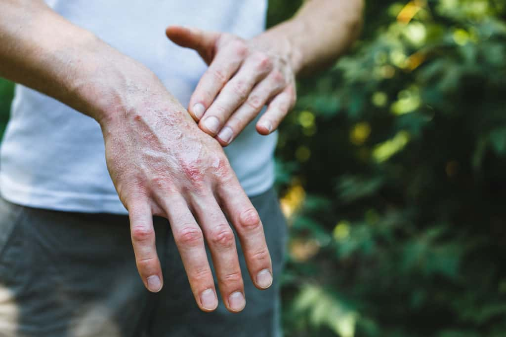 Hand with Psoriasis NAET Dubai