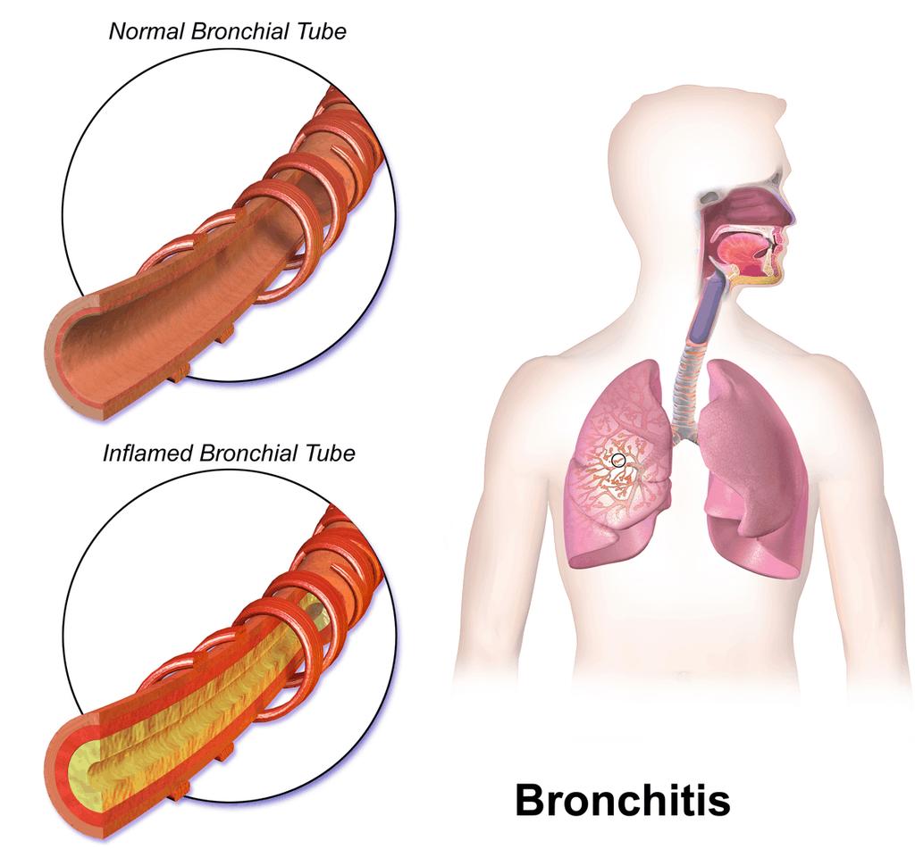 Bronchitis NAET Dubai