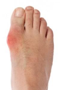 Arthritis caused by excess uric acid - NAET Dubai