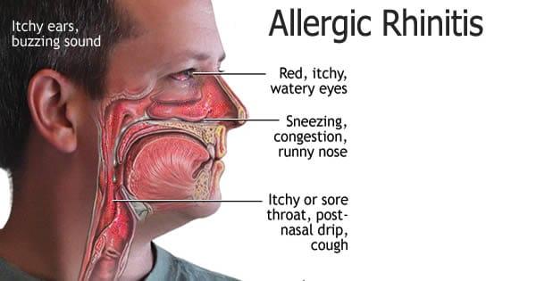 Symptoms of Allergic Rhinitis NAET Dubai