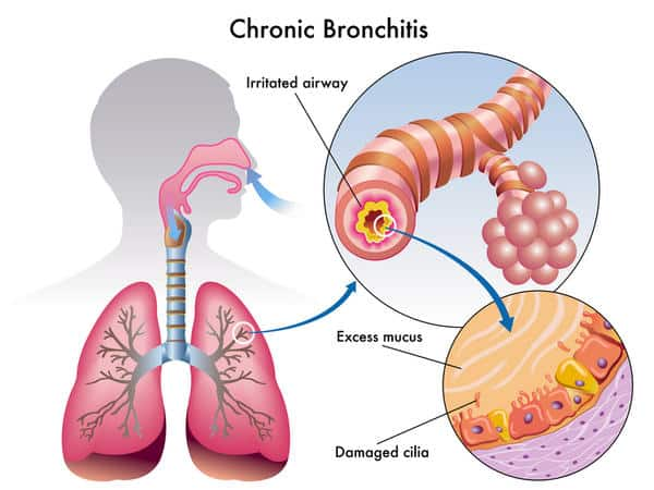 Effect of Chronic Bronchitis NAET Dubai