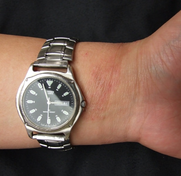A watch can cause skin allergy -  NAET Dubai