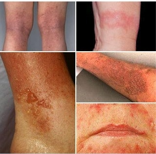 Skin rashes NAET Dubai