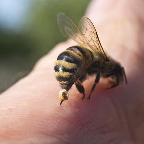 Bee stings - NAET Dubai