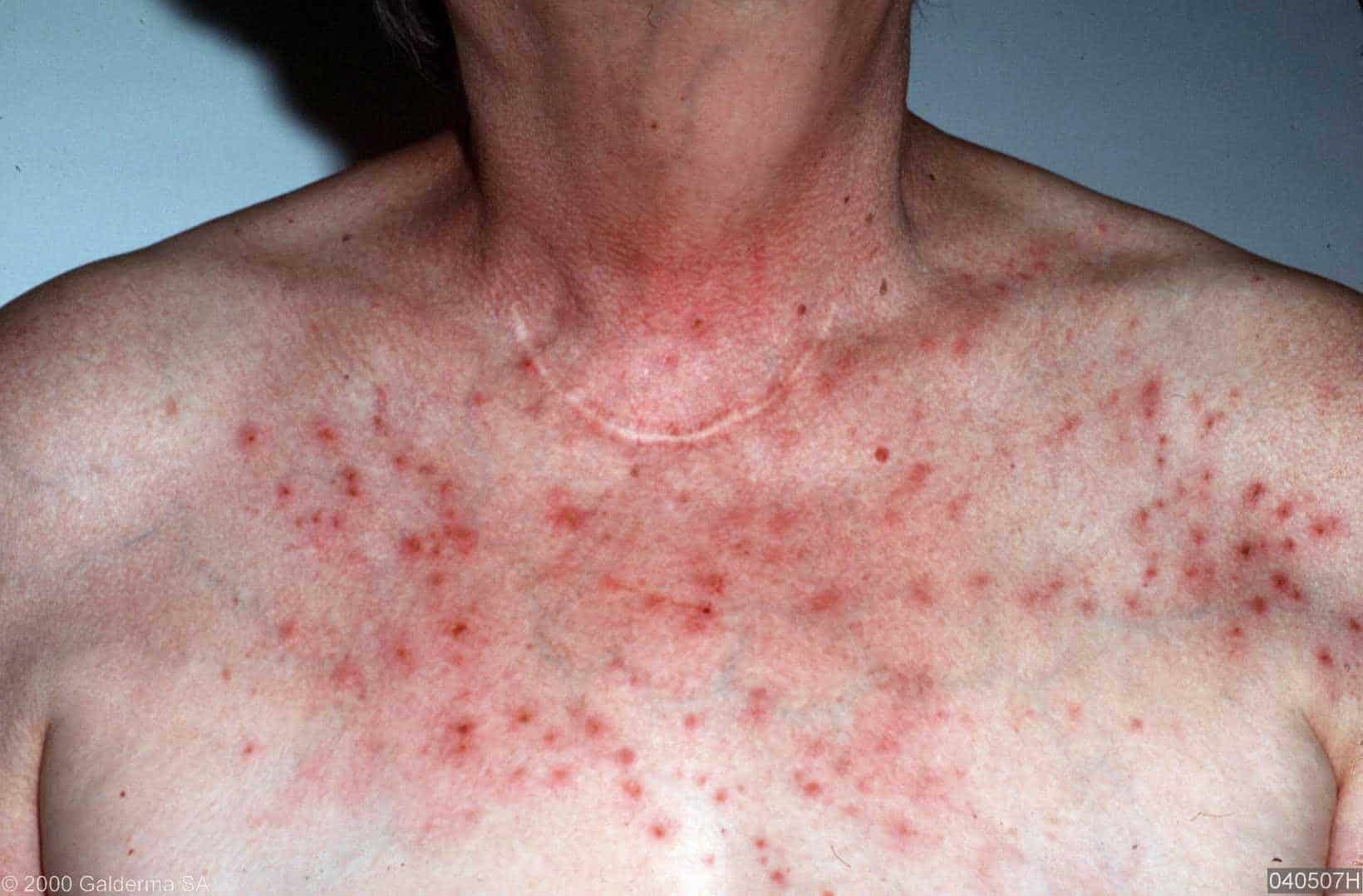 Rashes on the upper body - NAET Dubai