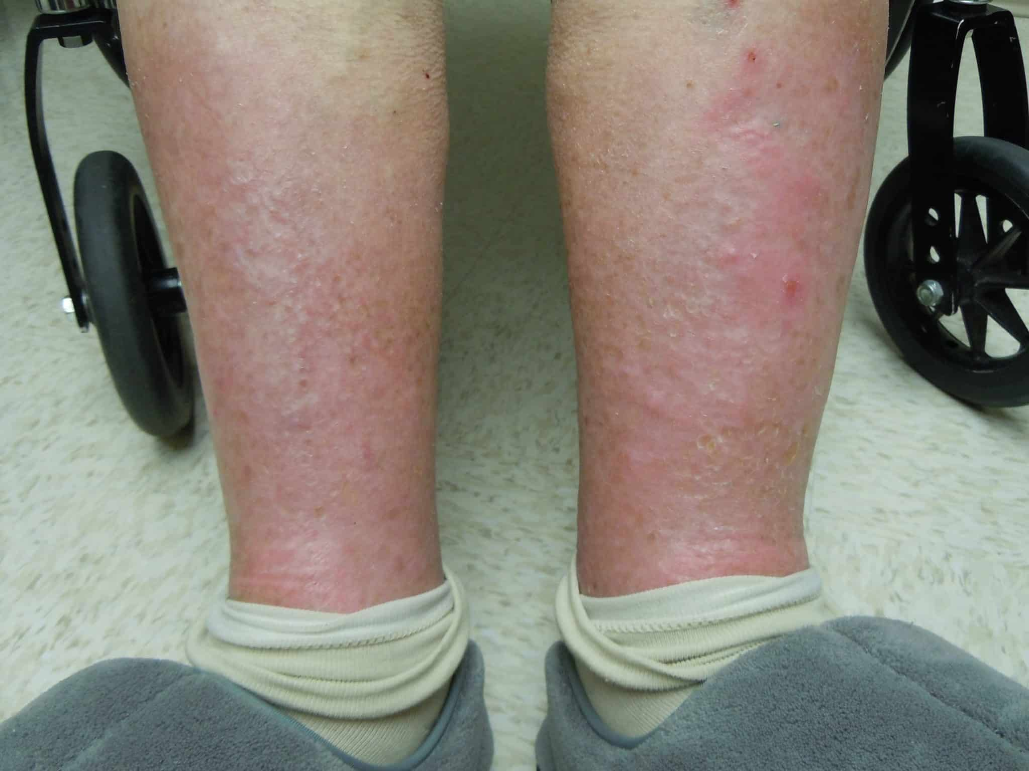 Rashes on the legs - NAET Dubai