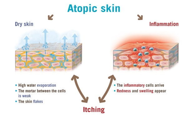 2 Types of Skin NAET Dubai