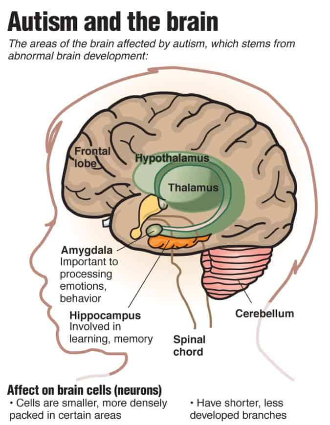 Main part of the brain - NAET Dubai