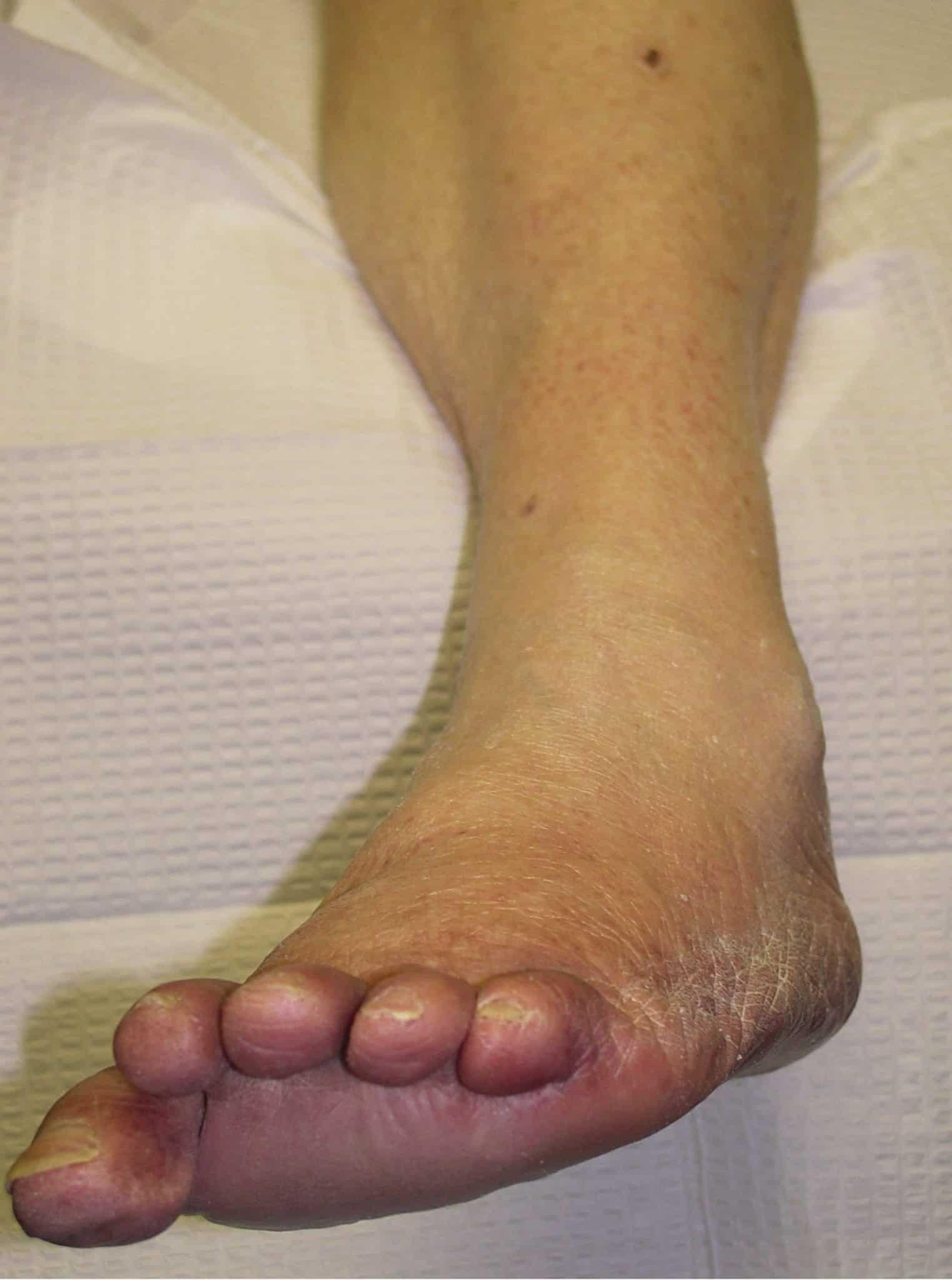 Diabetic feet NAET Dubai