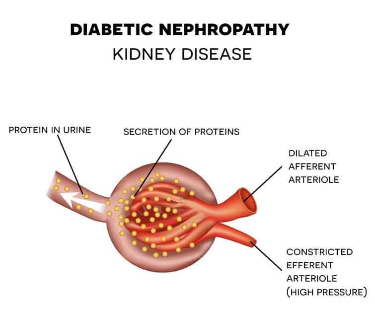 Diabetic Nephropathy NAET Dubai