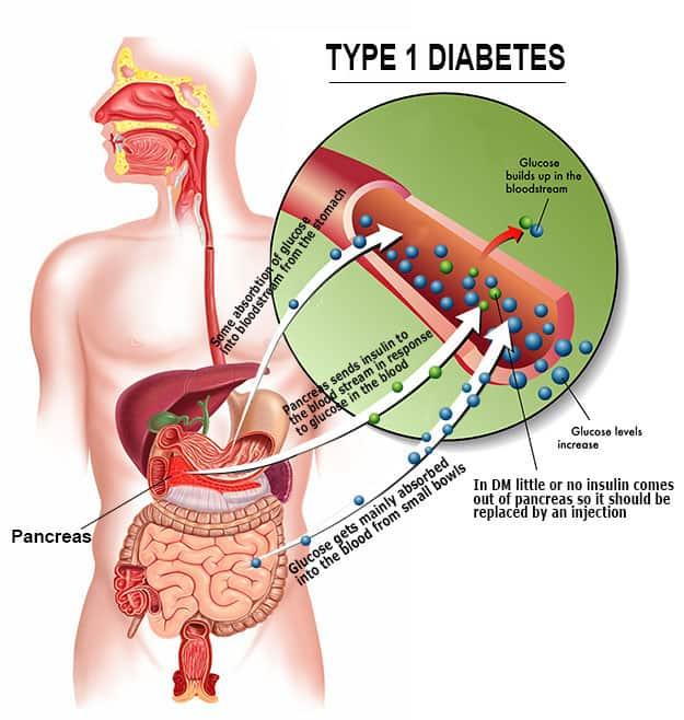 Type of Diabetes NAET Dubai