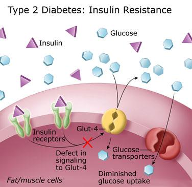 Types of Diabetes NAET Dubai