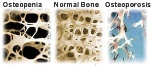 Types of Osteopenia Bone NAET Dubai