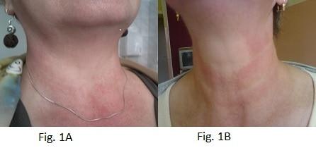 Chronic lymphocytic thyroiditis NAET Dubai