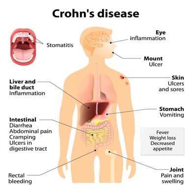 Crohn's Disease NAET Dubai