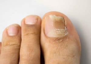 toenail-fungus in candida