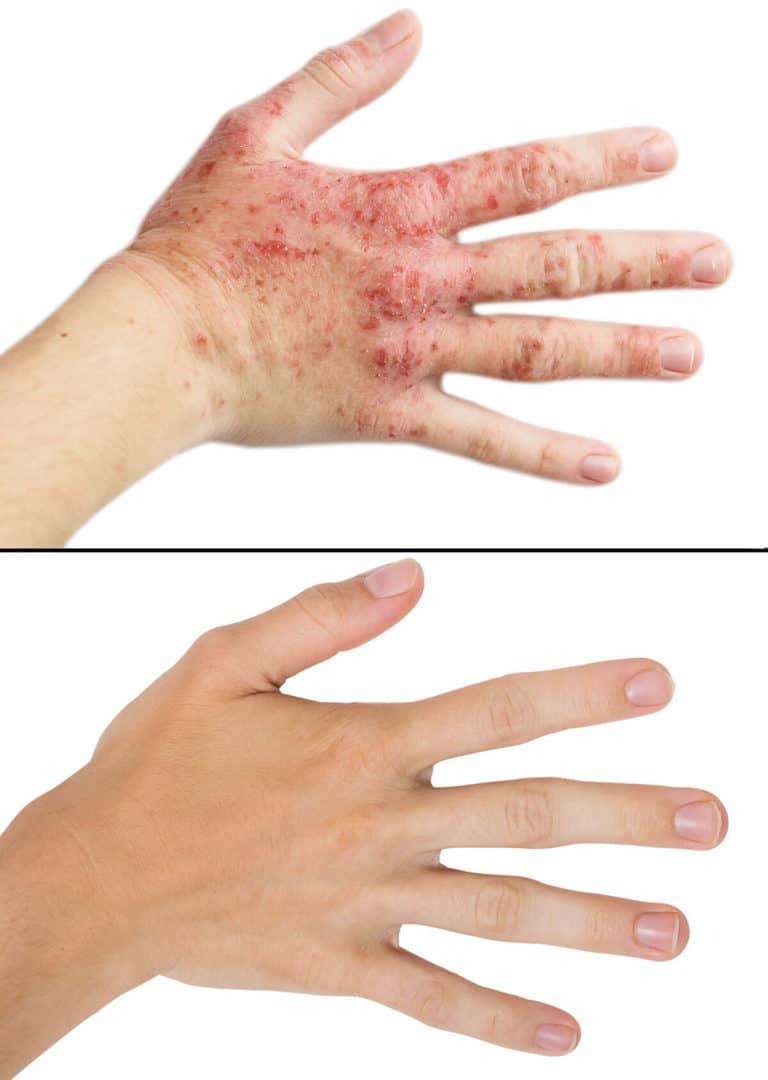 eczema photo