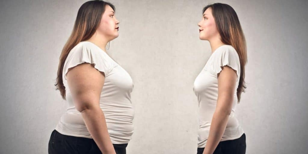Overweight due to Hormonal Imbalance