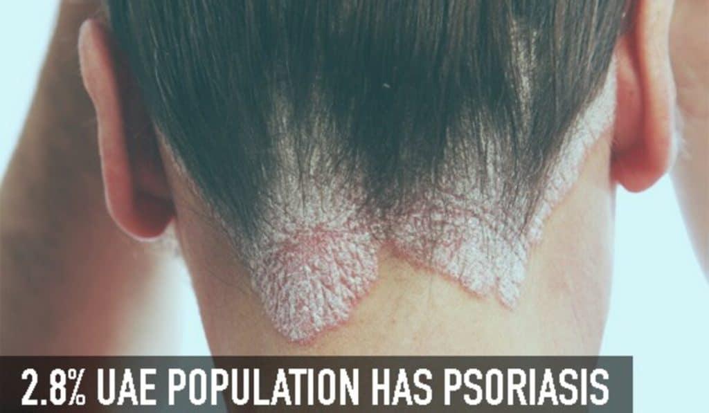 Psoriasis in UAE